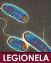 LEGIONELA La Comunidad de Madrid aumenta hasta 24 los casos de legionella diagnosticados en los distritos Centro y Retiro
